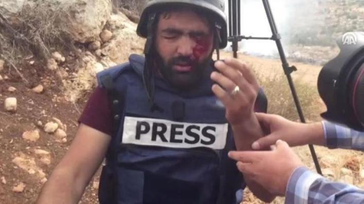 معاذ عمارنة يقول إن الاحتلال يسعى لطمس الحقيقة من خلال استهدافه للصحافيين