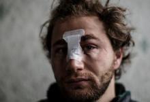 صورة فرنسا.. فتح تحقيق بإصابة صحفي سوري على يد الشرطة ونقابات الصحافة تدين عنفها
