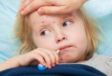 صورة أعراض مرض الحصبة وطرق العلاج الخاصة بها