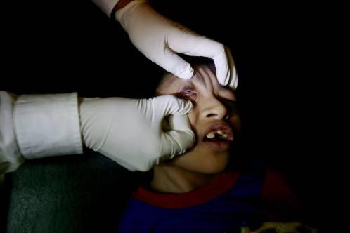 BATU PAHAT 15 April 2015. Kanak-kanak Sindrom Edward, Muhamad Iezad Mohamed Rosli semasa menerima rawatan di Klinik Mokhtar di Yong Peng, Johor. Foto Syarafiq Abd Samad