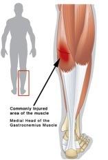 muscle strain diagram