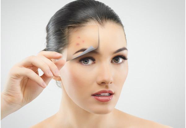 orvosság a fejbőr pikkelysömörére vélemények