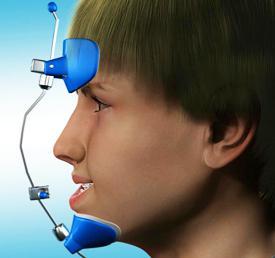 Челюсть вперед причины. Нижняя челюсть выступает вперед: о причинах формирования и лечении мезиального прикуса