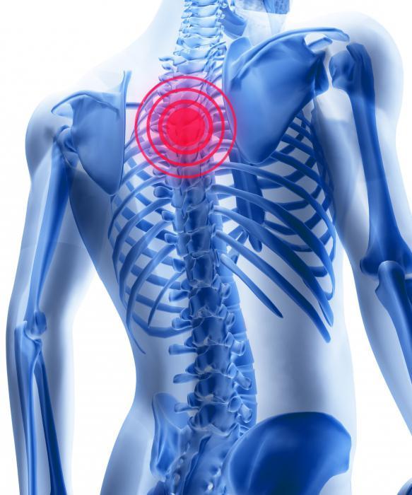 Osteochondroza preparatelor coloanei toracice. Osteochondroza lombosacrală: tratament și simptome