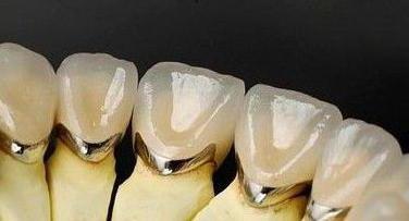 Гарантия на коронку зуба по закону. Гарантия на пломбу зуба по закону в рф