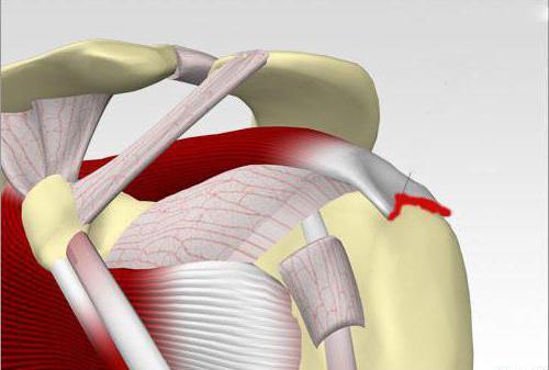 Может ли болеть под мышкой перед месячными. Боль в зоне подмышки может быть вызвана остеохондрозом
