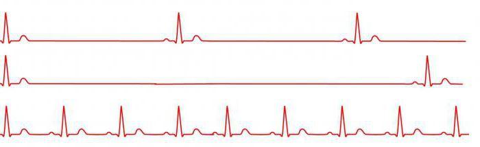 magas vérnyomásból egilok)