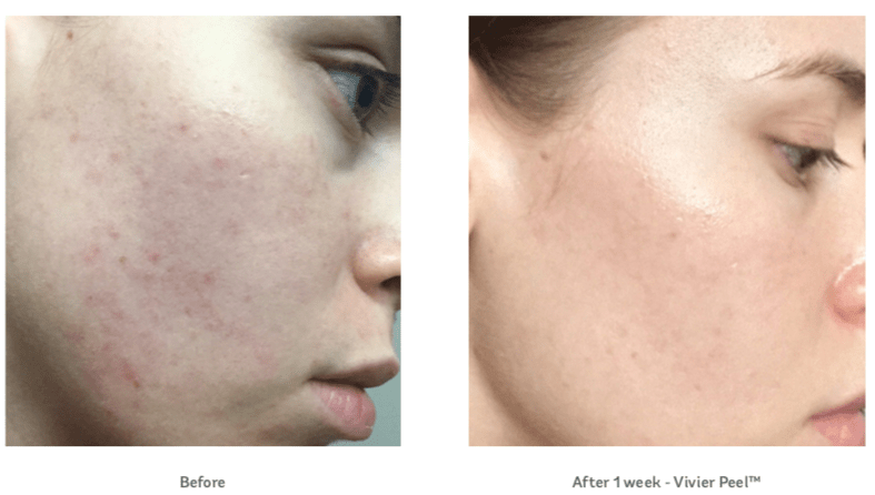 Vivier Peel Before and After
