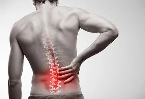 Low Back Pain Naperville
