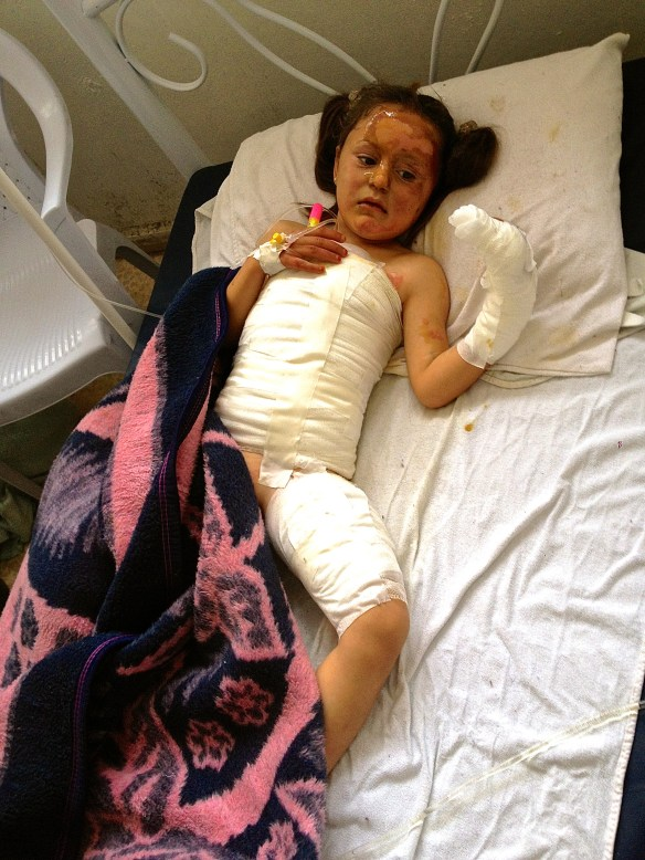 Fatima, 5, suffered severe burns over 80% of her body after her mother attempted to use unrefined crude oil to heat their tent. The homemade refineries have helped to reduce these types of dangerous accidents from occurring, while substituting these risks with highly toxic chemicals in the air.