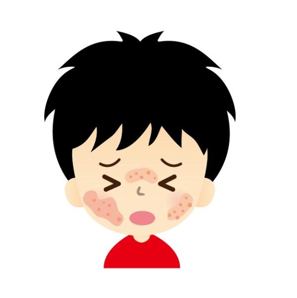 コリン性蕁麻疹とは?温熱蕁麻疹とは?その違い