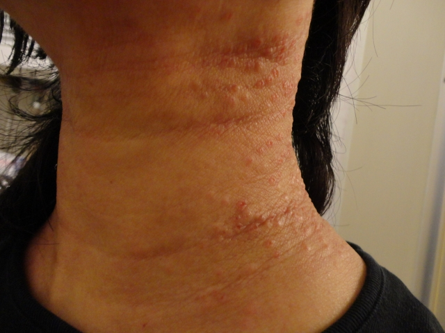減汗性コリン性蕁麻疹の治療はお風呂がいい?