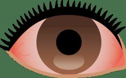 紫外線で目が痛い時の目薬は?日焼けの影響で充血?