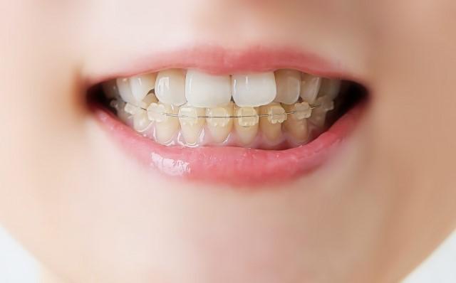 原因や症状・治療・予防法【酸蝕歯について】