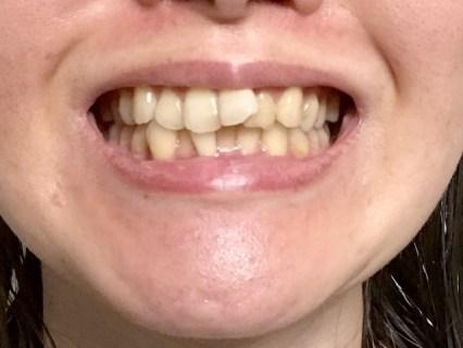 治療法や保険適用は?すきっ歯での発音や原因と自分での矯正