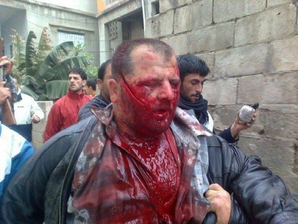 """Nidal Jannoud, Syrian victim of Obama's """"moderate opposition,"""" shortly before his murder on 21 April 2011. At that time, the takfiri barbarians were under one umbrella group, the """"Free Syrian Army,"""" before branching off into an infinite number of subsect gangs of mass murderers."""