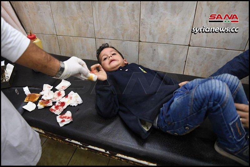 Children among the casualties of Erdogan terrorists bombing of Aleppo