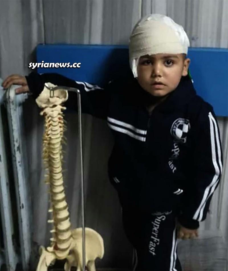 Surgery on Syrian child with Rasmussen's Encephalitis