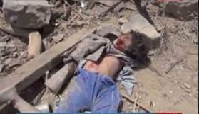 yemen-massacre- (1)