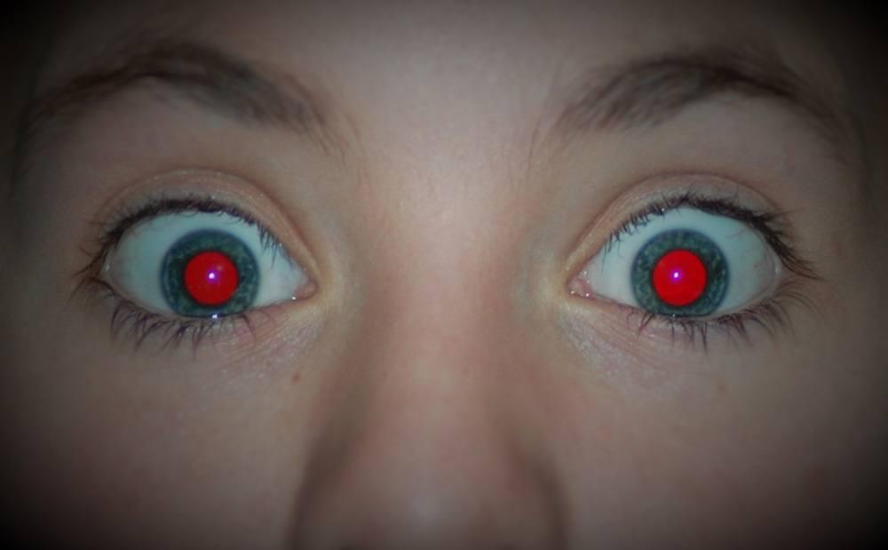 redeye main new - بالخطوات.. تعرف على كيفية ازالة العين الحمراء من الصور على جوالات ايفون