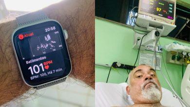Photo of ساعة آبل تنقذ رجلًا برازيليًا بعد تعرضه لأزمة قلبيّة