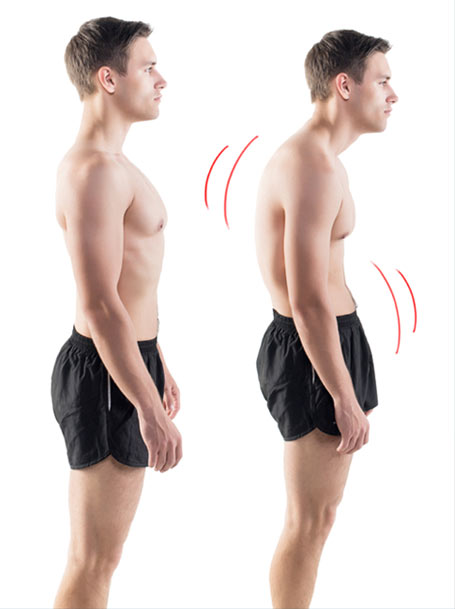 Forward Head Posture Fix Reviews