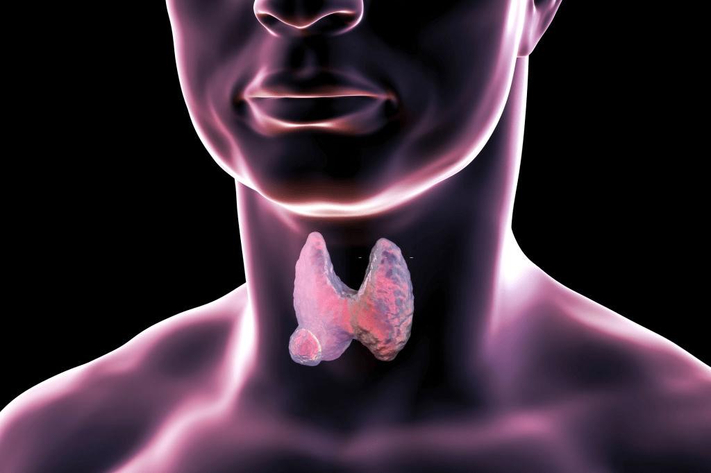 Best Natural Remedies for Hypothyroidism