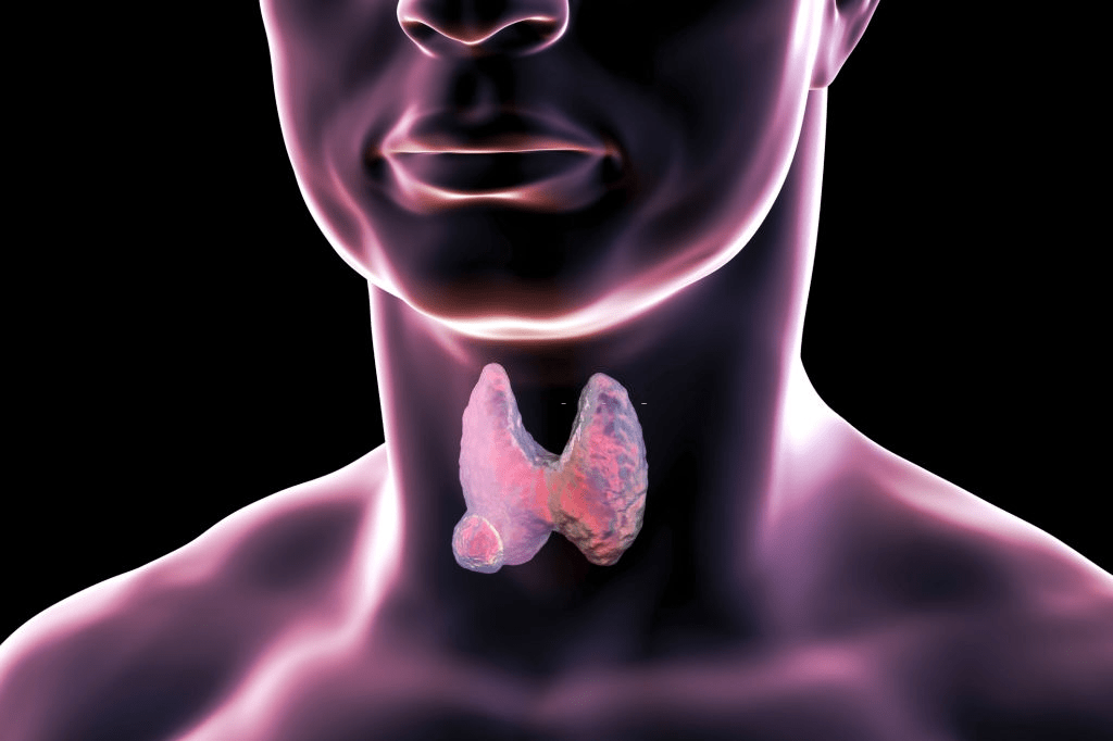 Best Natural Remedies for Hypothyroidism