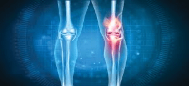 Most Common Symptoms And Causes Of Arthritis