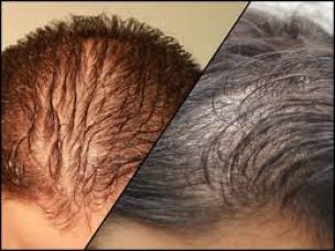 Hair Fortin supplement