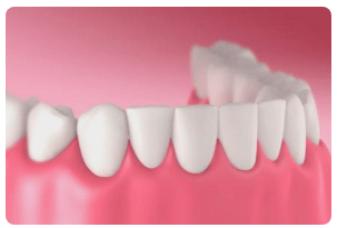 Home Dental Solutions pdf
