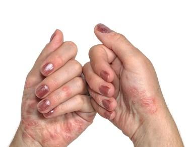 Shingle disease