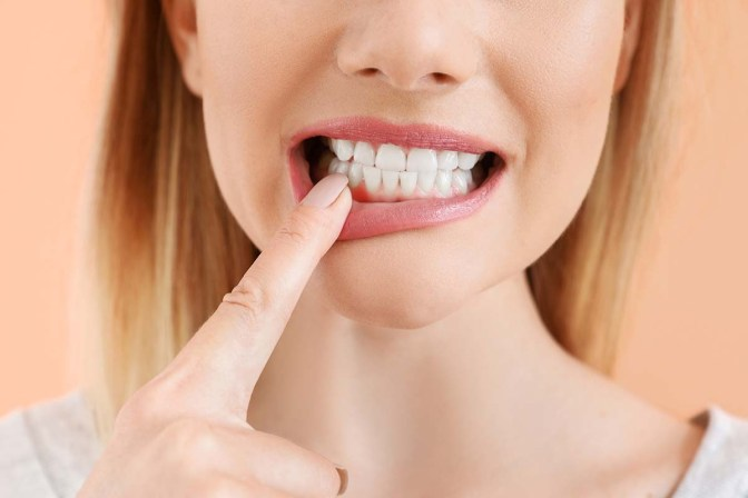 Natural Remedies For Receding Gums - All You Need To Know