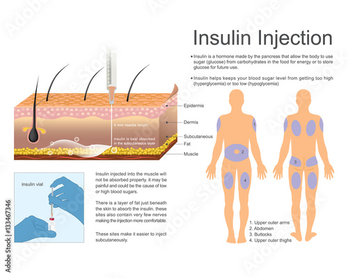 Arabic Inject Insulin Steps