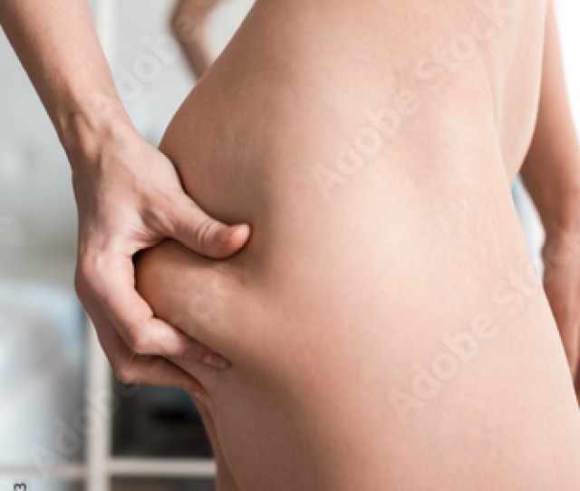 Young Caucasian Woman Without Clothes Has Squeezed A Skin On A Leg Considers The Cellulitis On The Hip Light Background