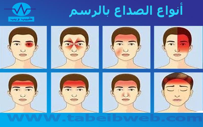 أنواع الصداع بالرسم طبيب ويب