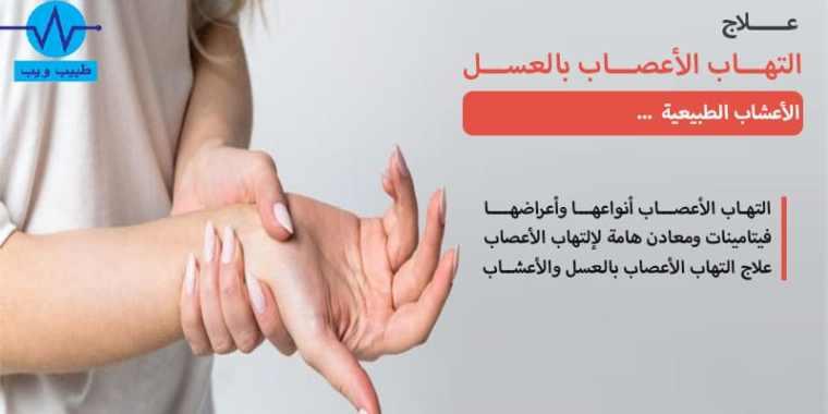 علاج التهاب الأعصاب بالعسل