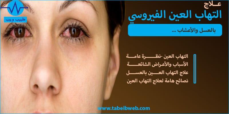 علاج التهاب العين الفيروسي بالعسل