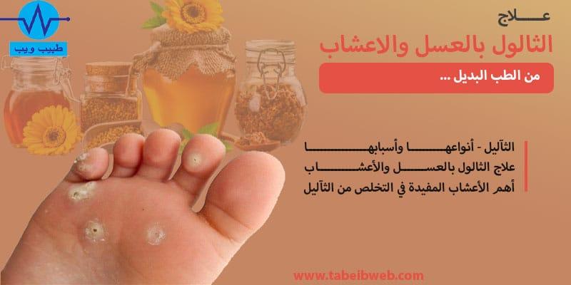 علاج الثالول بالعسل والاعشاب