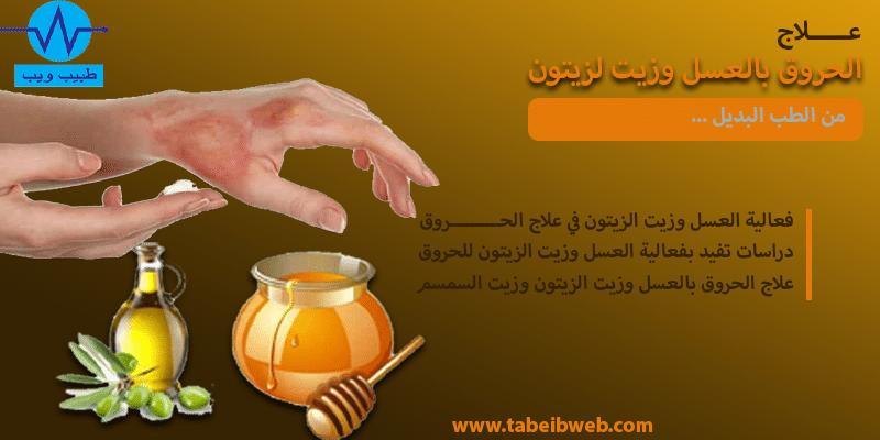 علاج الحروق بالعسل وزيت الزيتون