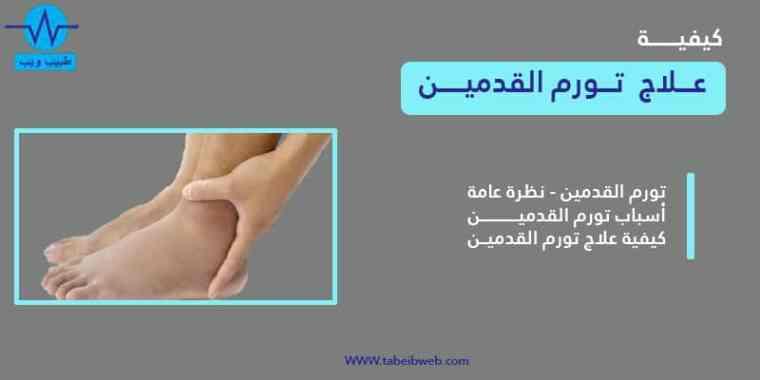 علاج تورم القدمين بعدة طرق مجربة وفعالة