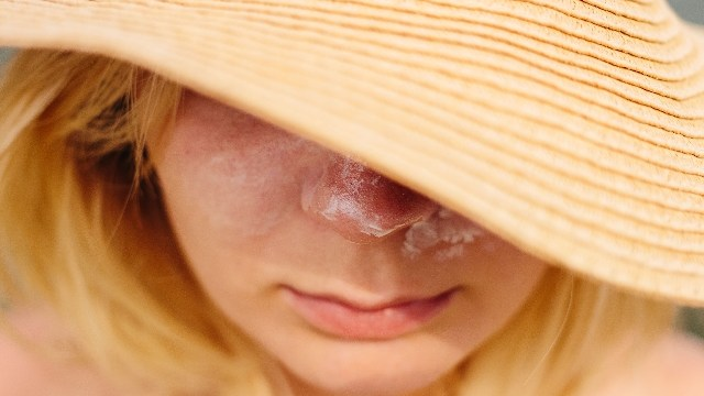 日焼けによる頭の痒みを早く抑える正しい方法