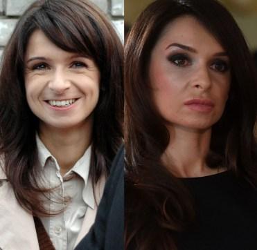 Przed botoxem, po botoxie