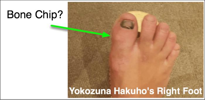 hakuho-foot