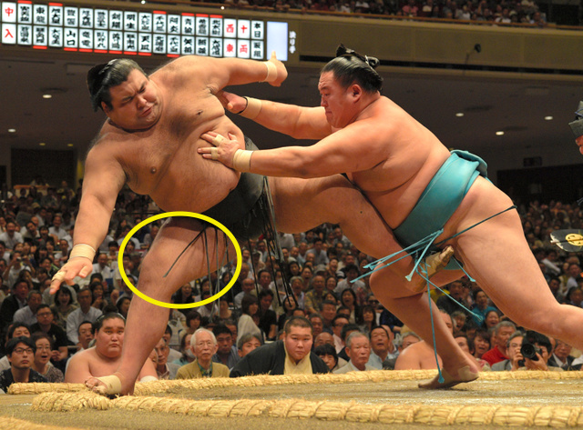 Takayasu-Thigh
