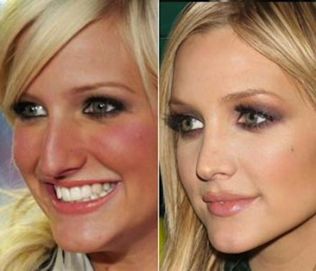 photo: beforeandafterceleb.com