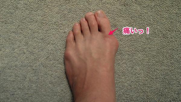 足の親指がすごく痛くなったので、久しぶりにテーピングしました