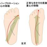 オーバープロネーションの人が外反母趾にもなりやすい理由