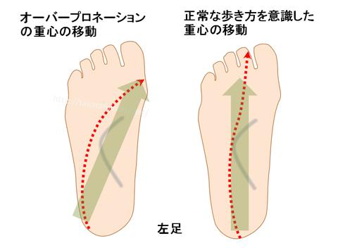 足底の重心の動き