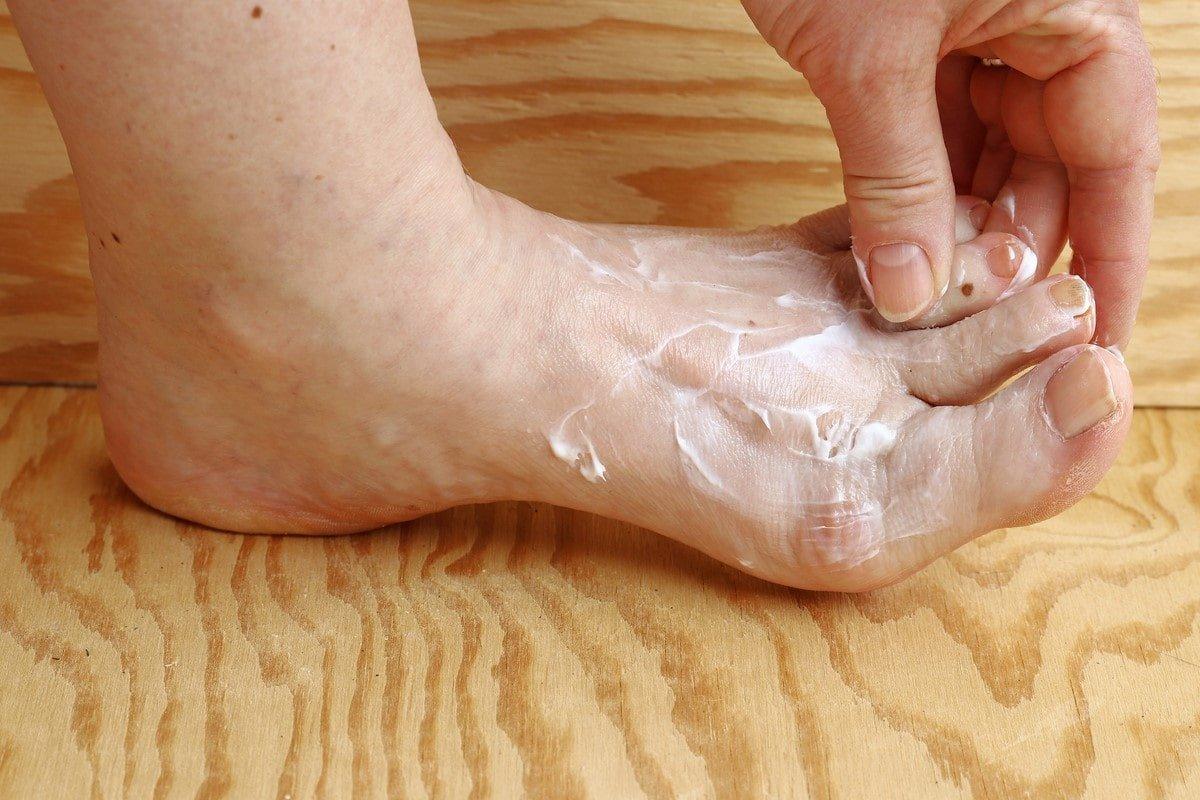уксус и сода от грибка ногтей
